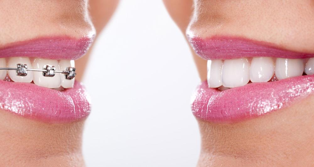 bracket ortodoncia dentadura